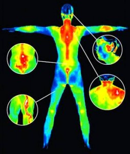 Mammograms vs. Thermoscans